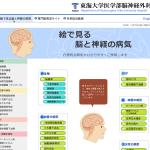 東海大学病院脳神経外科・絵で見る脳と神経の病気のイメージ画像